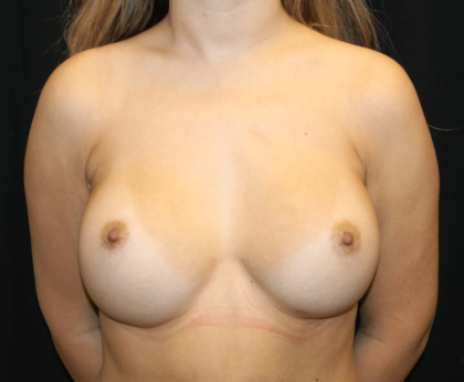 Breast Augmentation - Round Silicone Implants Before & After Patient #28323