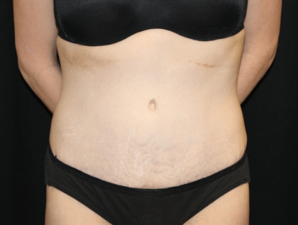 Tummy Tuck Before & After Patient #28312