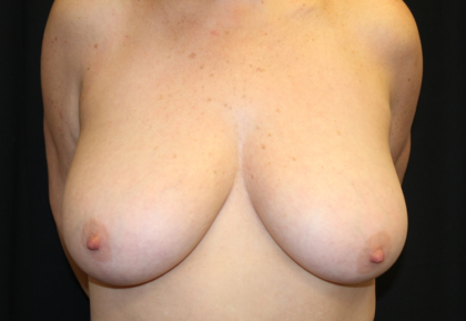 Breast Lift Before & After Patient #28343
