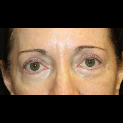 Blepharoplasty Before & After Patient #28334