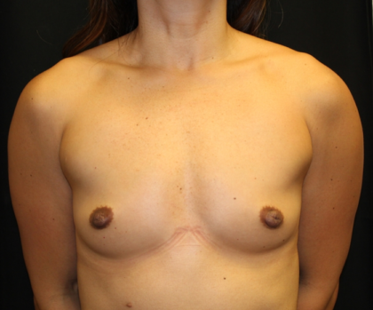 Breast Augmentation - Round Silicone Implants Before & After Patient #28258
