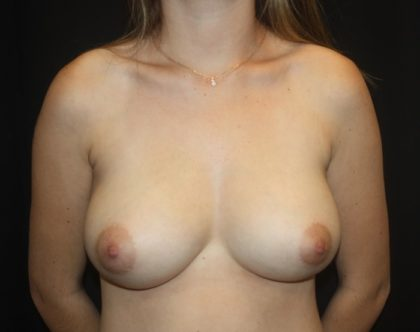 Breast Lift Before & After Patient #28269
