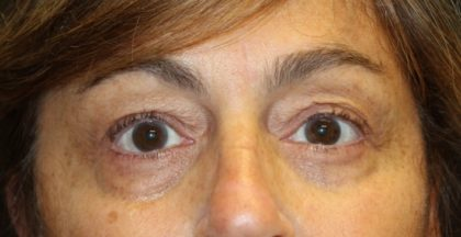 Blepharoplasty Before & After Patient #28251