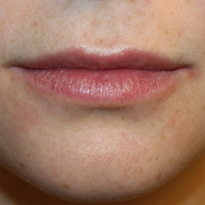 Injectable Fillers Before & After Patient #28445