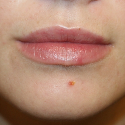 Injectable Fillers Before & After Patient #28377