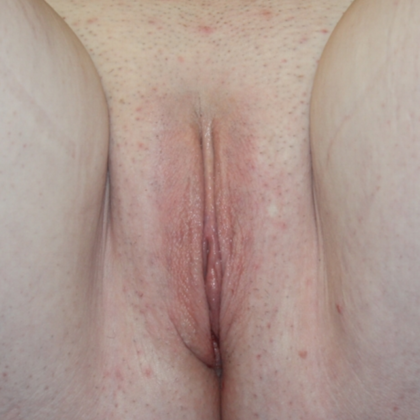 Labiaplasty Before & After Patient #28359