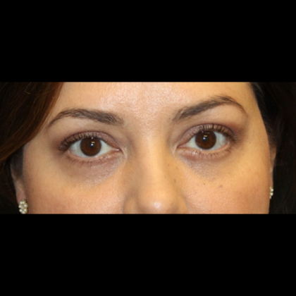 Blepharoplasty Before & After Patient #28362