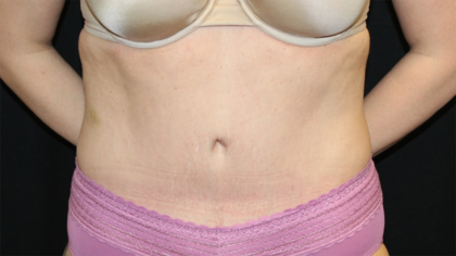 Tummy Tuck Before & After Patient #28452