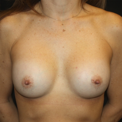Breast Augmentation - Round Silicone Implants Before & After Patient #28380