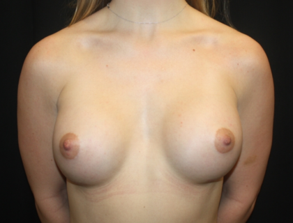 Breast Augmentation - Round Silicone Implants Before & After Patient #28392