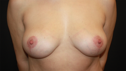 Breast Lift Before & After Patient #28474