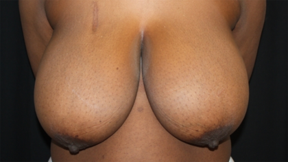 Breast Reduction Before & After Patient #28463