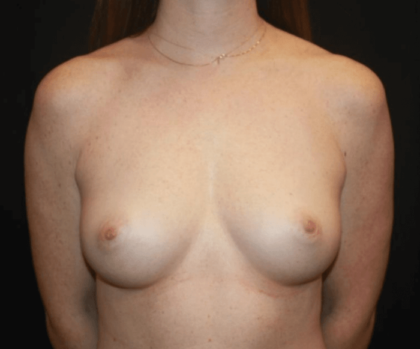 Breast Augmentation - Round Silicone Implants Before & After Patient #28804