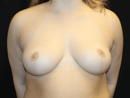 Breast Reduction Before & After Patient #28835