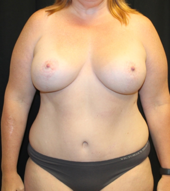 Tummy Tuck Before & After Patient #28731