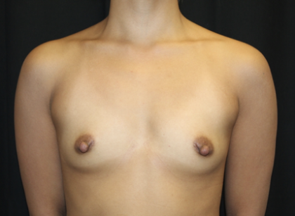 Breast Augmentation - Round Silicone Implants Before & After Patient #28660