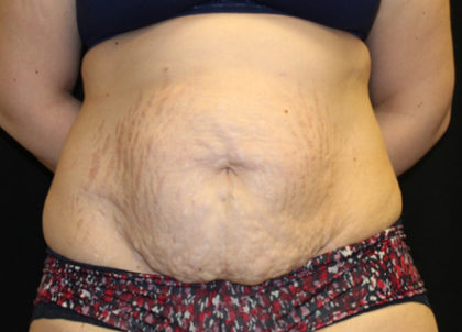 Tummy Tuck Before & After Patient #28742