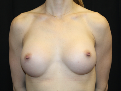 Breast Augmentation - Round Silicone Implants Before & After Patient #28523
