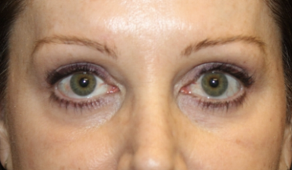 Blepharoplasty Before & After Patient #28633