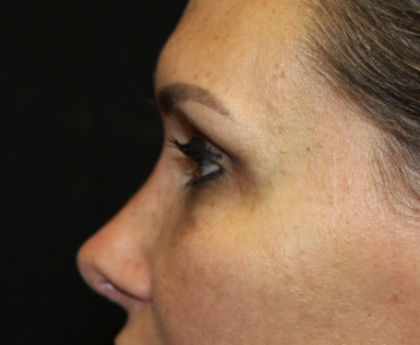 Rhinoplasty Before & After Patient #28642