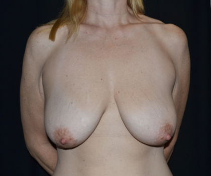 Breast Lift Before & After Patient #28535