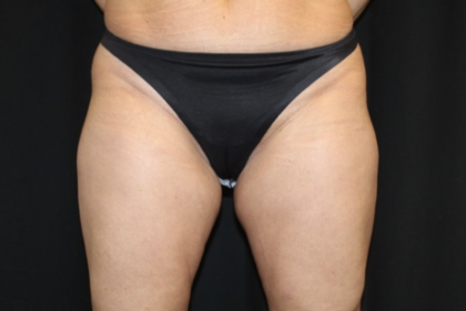 Liposuction Before & After Patient #28568