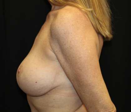 Breast Lift Before & After Patient #28546