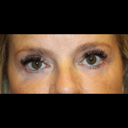 Blepharoplasty Before & After Patient #28788