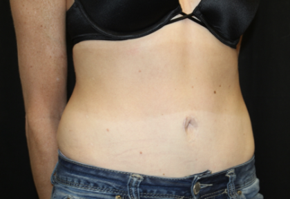 Tummy Tuck Before & After Patient #28691