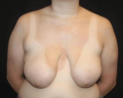 Breast Lift Before & After Patient #28600