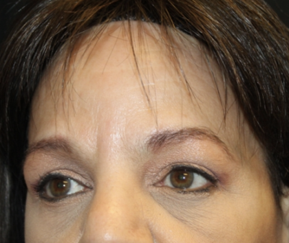 Brow Lift Before & After Patient #28713