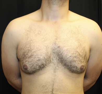 Gynecomastia Before & After Patient #28649