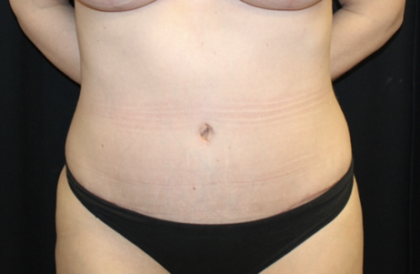 Tummy Tuck Before & After Patient #28671
