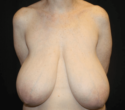 Breast Reduction Before & After Patient #28872