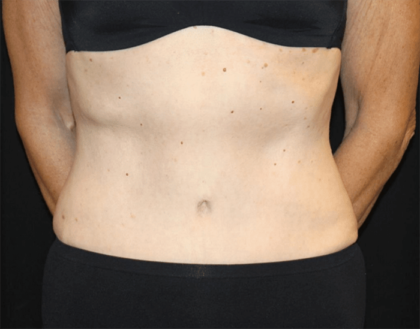 Tummy Tuck Before & After Patient #28861