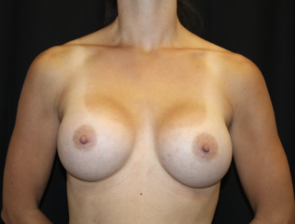 Breast Augmentation - Round Silicone Implants Before & After Patient #28912