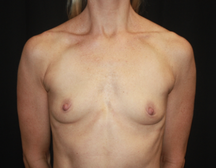 Breast Augmentation - Round Silicone Implants Before & After Patient #28892