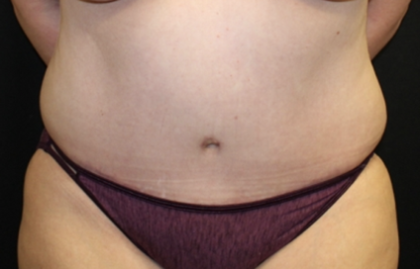 Tummy Tuck Before & After Patient #28881
