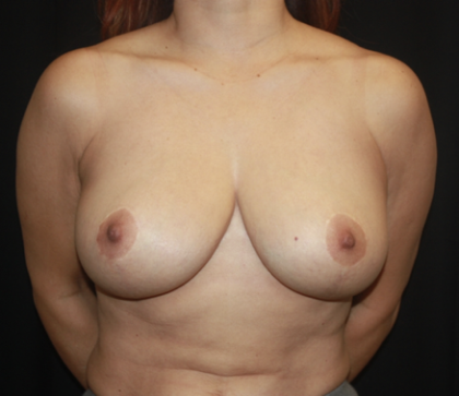 Breast Lift Before & After Patient #28934