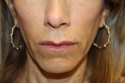 Injectable Fillers Before & After Patient #28962