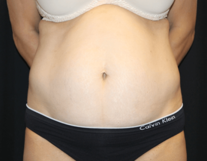 Tummy Tuck Before & After Patient #28999
