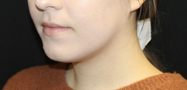 Kybella Before & After Patient #28984