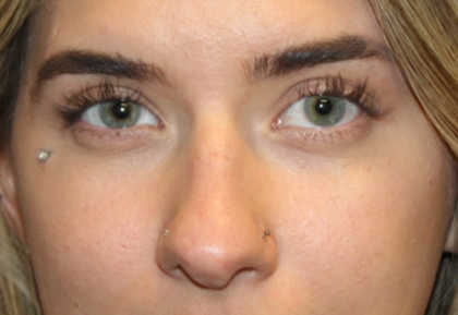 Rhinoplasty Before & After Patient #29021