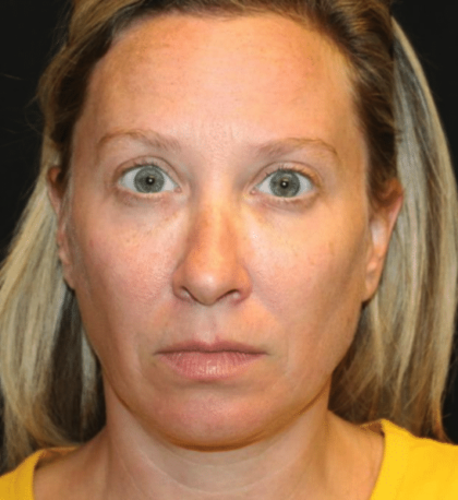 Injectable Fillers Before & After Patient #29081
