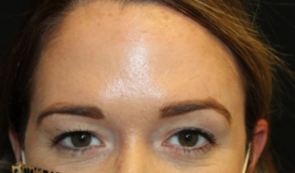 Botox and Dysport Before & After Patient #29249