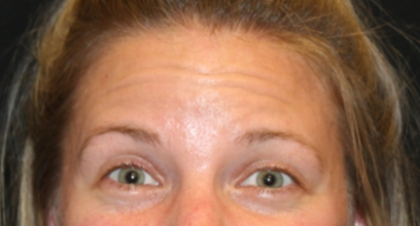 Botox and Dysport Before & After Patient #29226