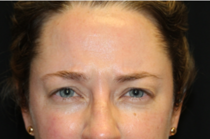Botox and Dysport Before & After Patient #29232