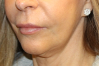 Botox and Dysport Before & After Patient #29256