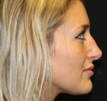 Botox and Dysport Before & After Patient #29237