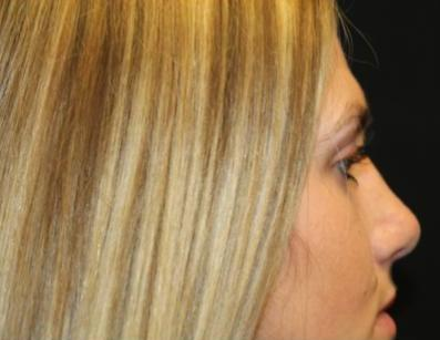 Rhinoplasty Before & After Patient #29206
